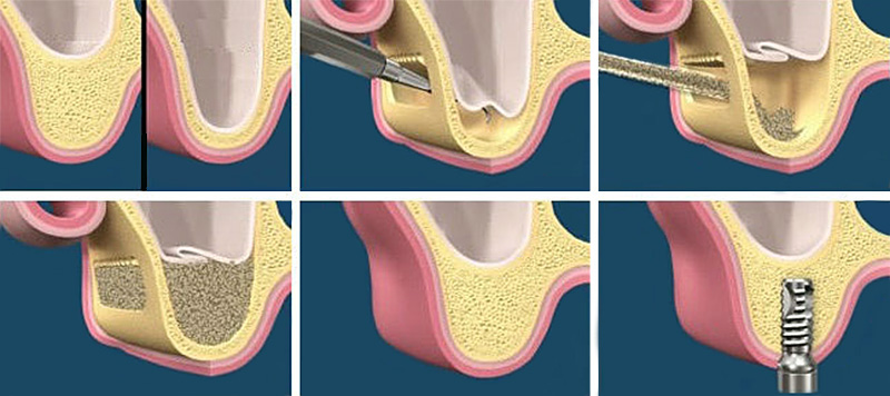Sinus Floor Elevation And Implant Placement : Sinus floor elevation lift implant centre martinko